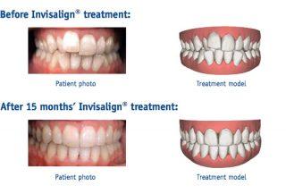 Invisalign Treatment
