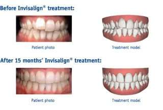 before after invisalign treatment